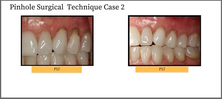 pinholesurgicaltechniquecase2