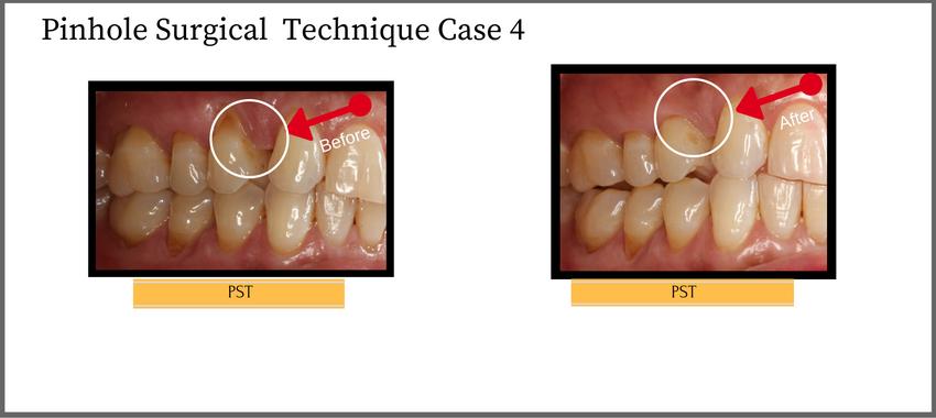 Pinhole Surgical Technique