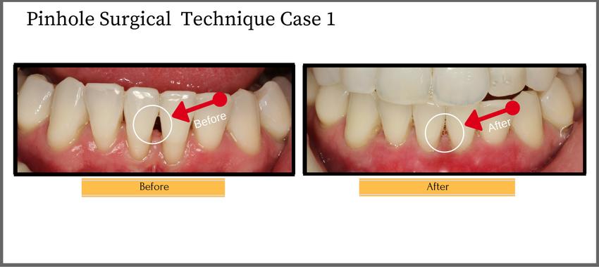 pinholesurgicaltechniquecase1