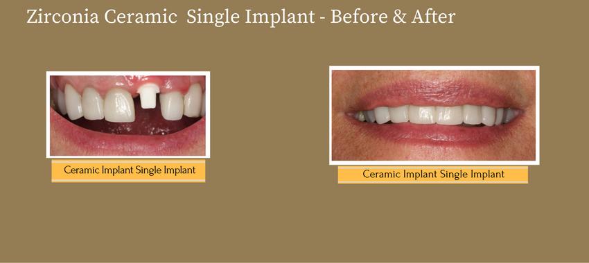 singleimplant1