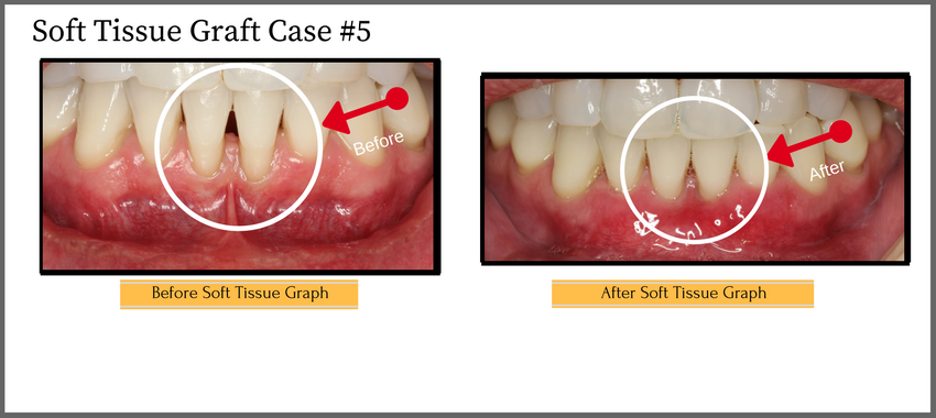 soft tissue graft #5 Replacement photo