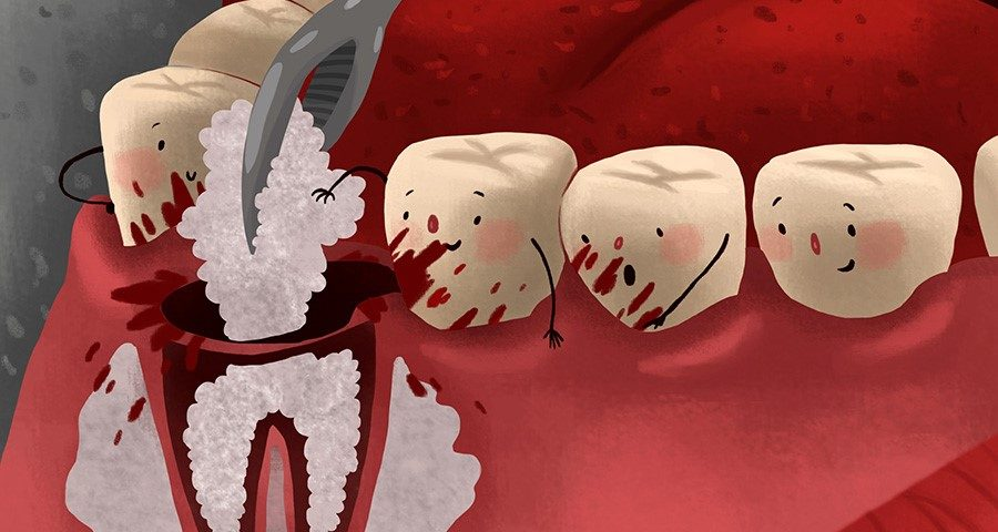 Dental Bone Graft Tips For After Care And Reduce The Complications