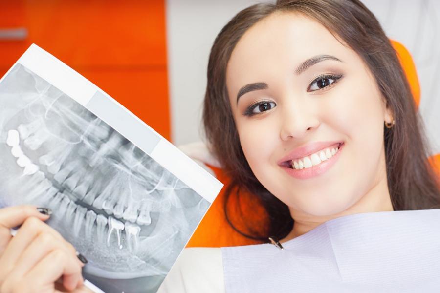 How do I prepare for dental bone grafting
