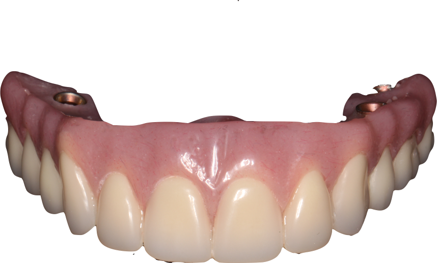 WHAT ARE THE BENEFITS OF DENTURES SUPPORTED BY IMPLANTS?