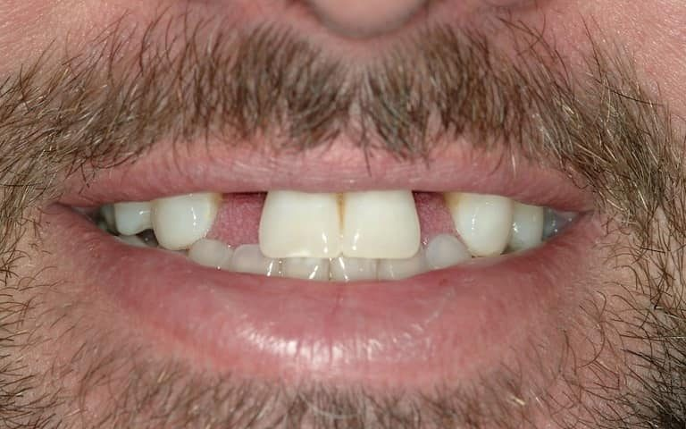 Multiple missing teeth replacement options
