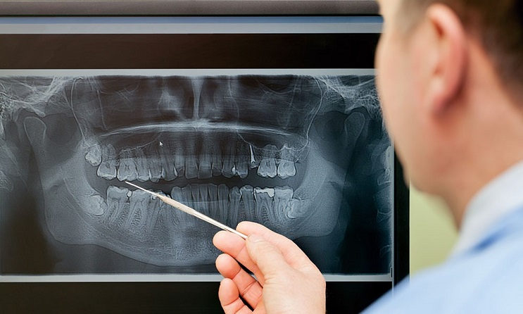 How do you know if your wisdom teeth should be removed
