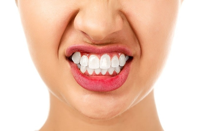 Dangerous of Teeth grinding(bruxism) and ways to treat and prevent-min