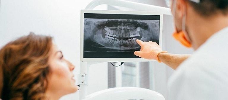 Digital X-Rays-min