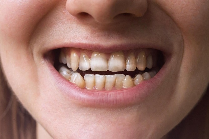 White spots on teeth-min