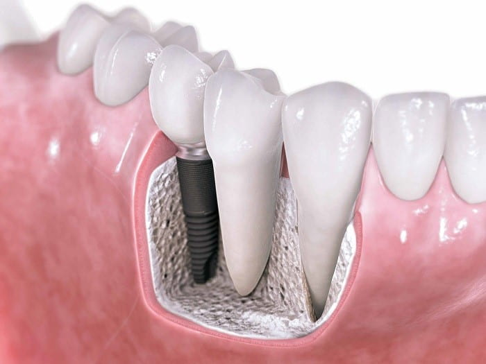 dental Implant procedure steps to have a beautiful smile