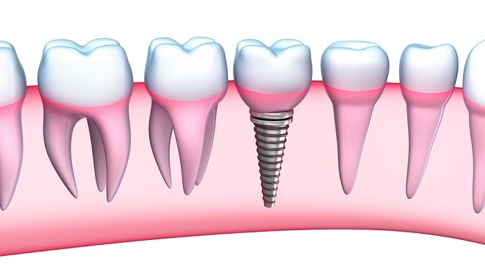 Dental implant benefits replace missing teeth by implants