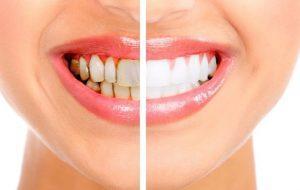 Is Dental Tartar Cleaning Dangerous