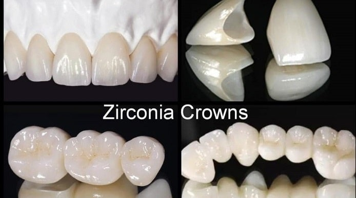 Full-Contour and Layered Zirconia Crowns