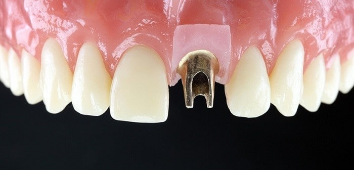 Types of implant crowns