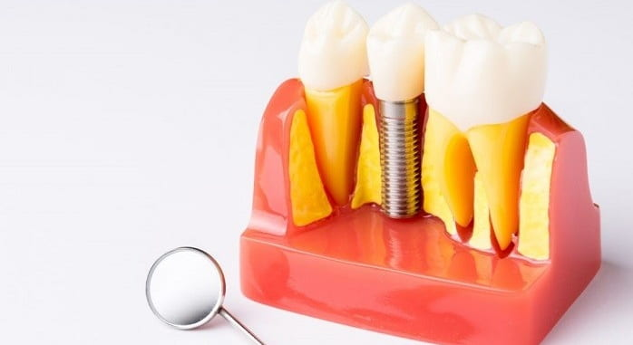Managing dental implant failing