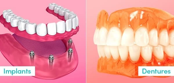 Dental implant vs denture